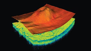 Diagnostic Optical Coherence Tomography
